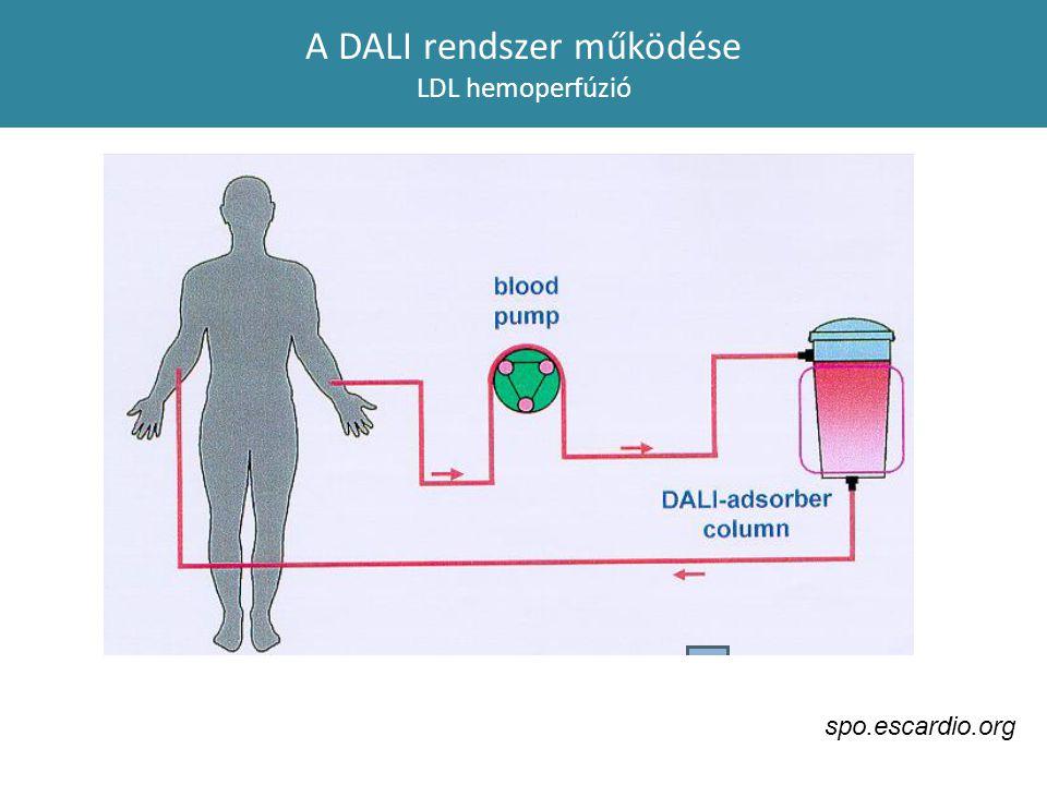 A DALI rendszer működése LDL hemoperfúzió spo.escardio.org