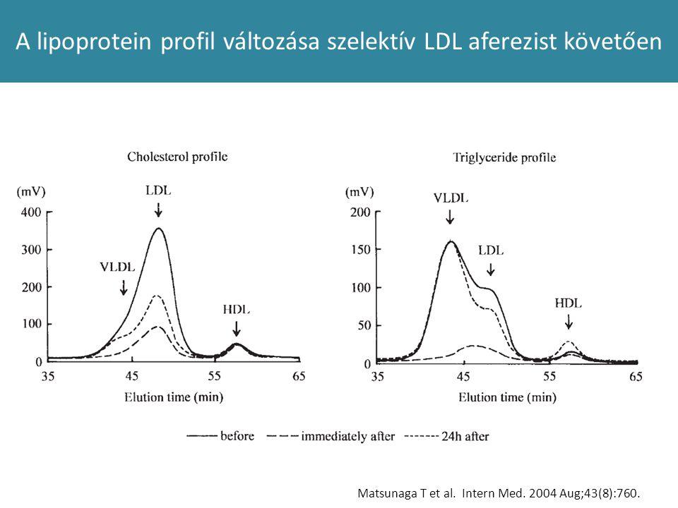 A lipoprotein profil változása szelektív LDL aferezist követően Matsunaga T et al. Intern Med. 2004 Aug;43(8):760.