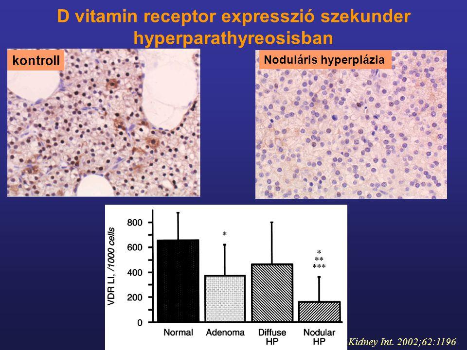 D vitamin receptor expresszió szekunder hyperparathyreosisban kontroll Kidney Int. 2002;62:1196 Noduláris hyperplázia