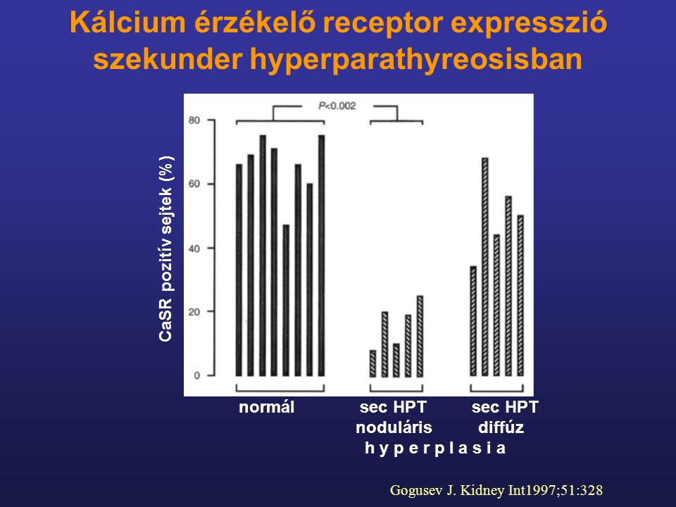 CaSR pozitív sejtek (%) Kálcium érzékelő receptor expresszió szekunder hyperparathyreosisban Gogusev J. Kidney Int1997;51:328 normál sec HPTsec HPT no