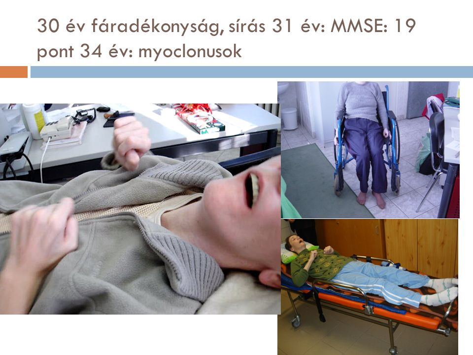30 év fáradékonyság, sírás 31 év: MMSE: 19 pont 34 év: myoclonusok