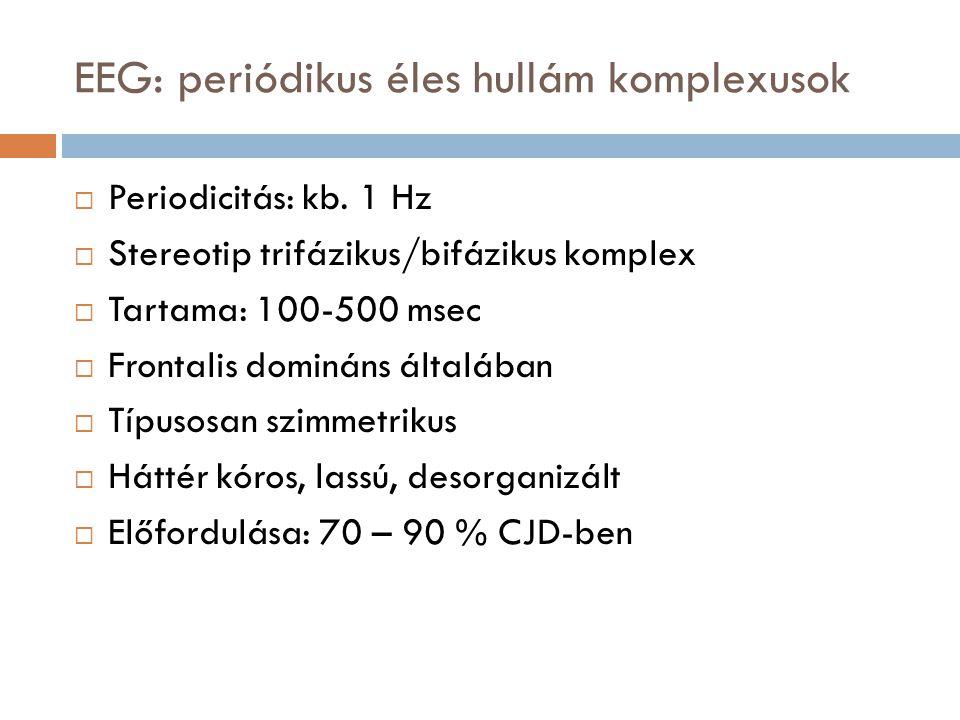 EEG: periódikus éles hullám komplexusok  Periodicitás: kb. 1 Hz  Stereotip trifázikus/bifázikus komplex  Tartama: 100-500 msec  Frontalis domináns