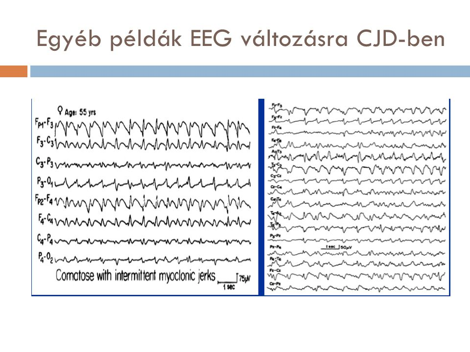 Egyéb példák EEG változásra CJD-ben