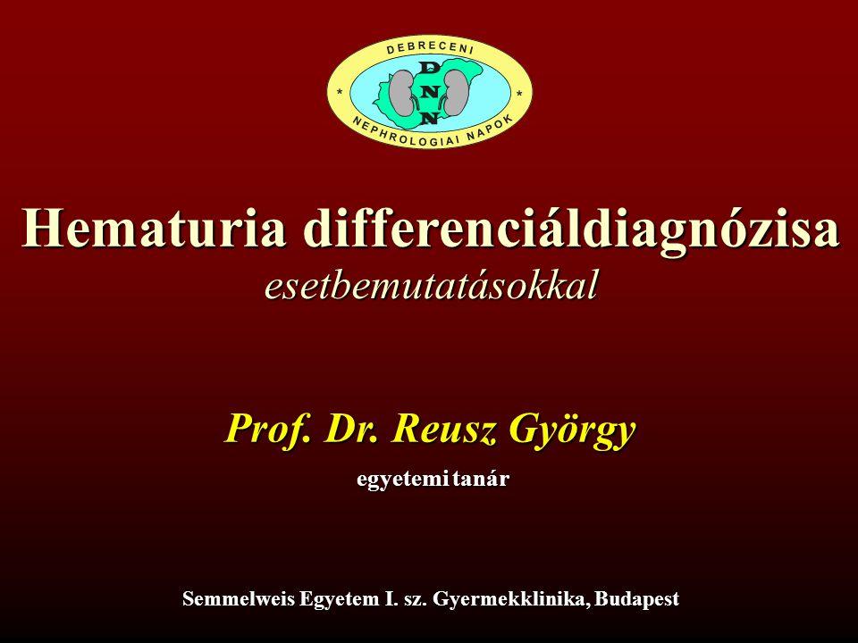 Hematuria differenciáldiagnózisa Prof.Dr. Reusz György egyetemi tanár Semmelweis Egyetem I.