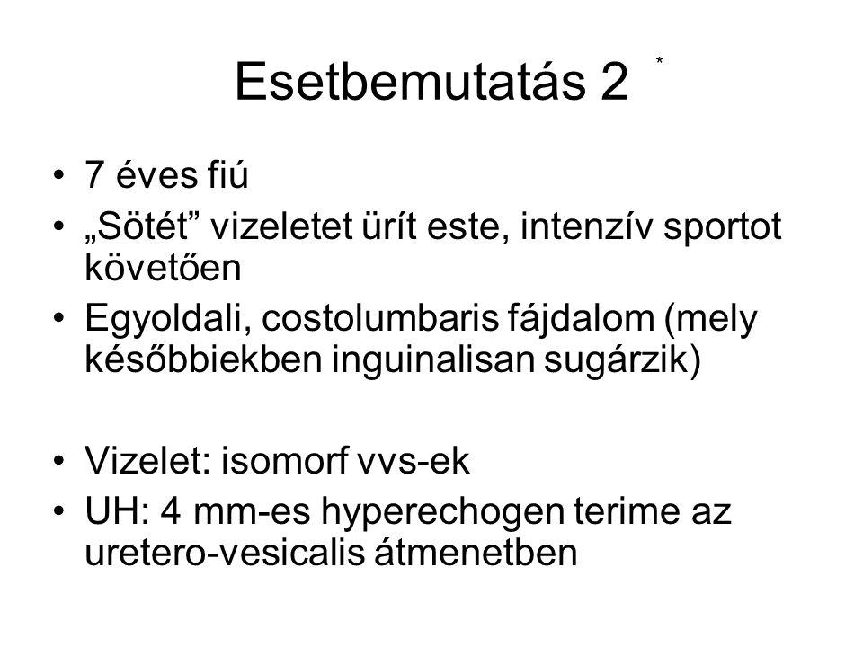 A hematuria okai eredete: Glomerularis hematuria Non-glomerularis hematuria