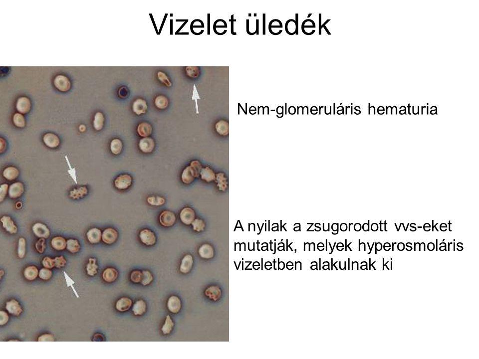 Vizelet üledék Nem-glomeruláris hematuria A nyilak a zsugorodott vvs-eket mutatják, melyek hyperosmoláris vizeletben alakulnak ki