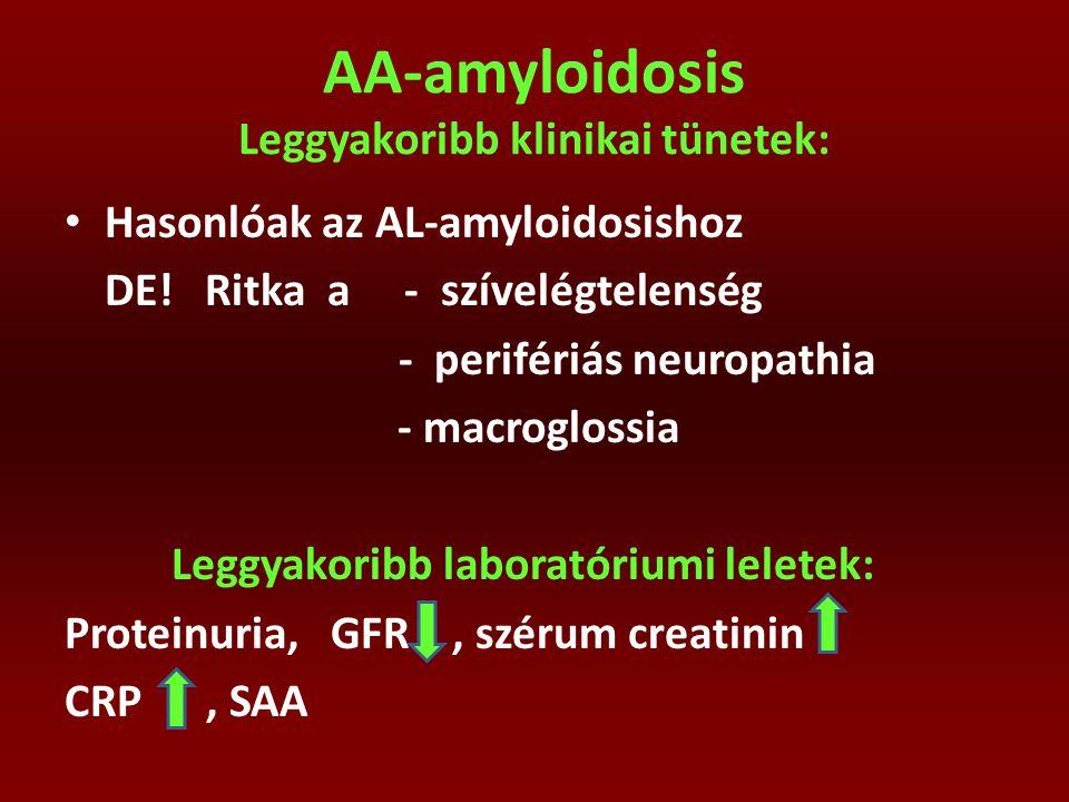 AA-amyloidosis Leggyakoribb klinikai tünetek: Hasonlóak az AL-amyloidosishoz DE! Ritka a - szívelégtelenség - perifériás neuropathia - macroglossia Le