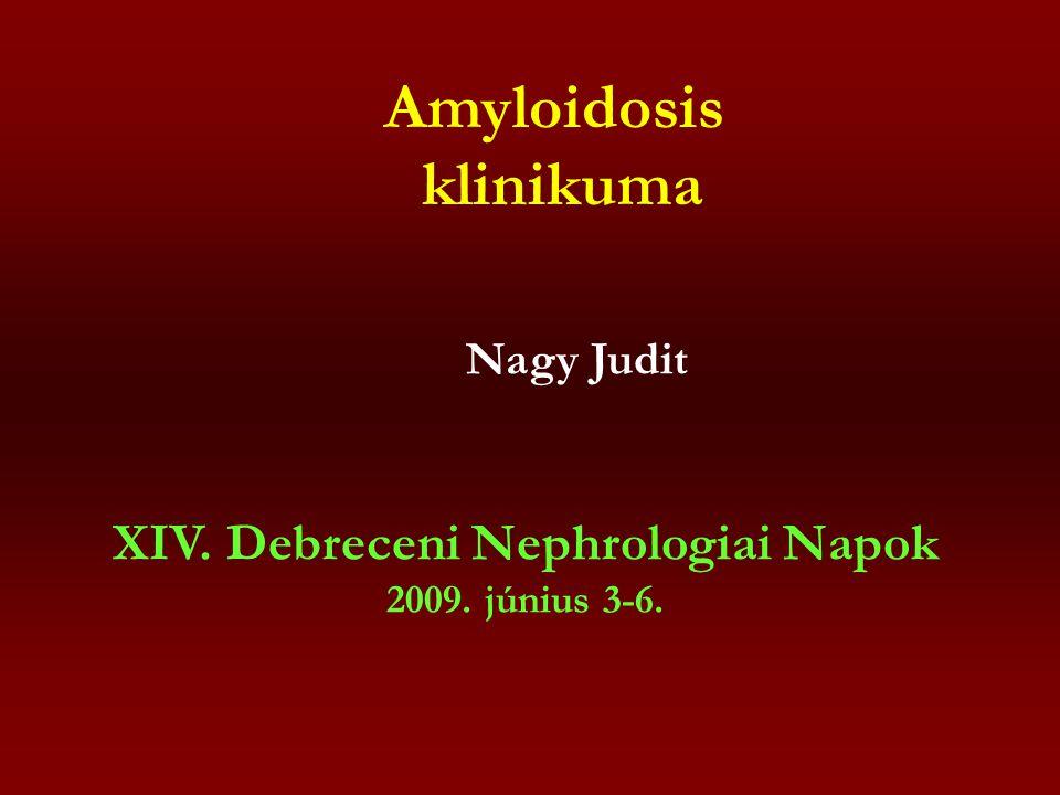 Amyloidosis kezelése AL-amyloidosis: (Dember et al.
