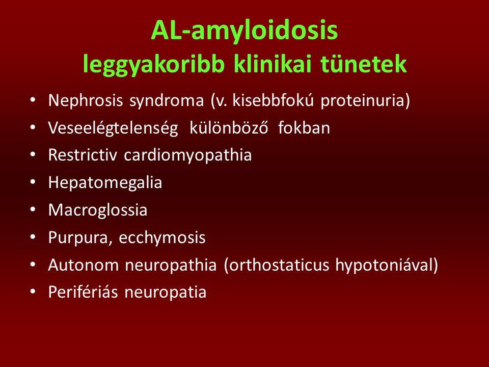 AL-amyloidosis leggyakoribb klinikai tünetek Nephrosis syndroma (v. kisebbfokú proteinuria) Veseelégtelenség különböző fokban Restrictiv cardiomyopath