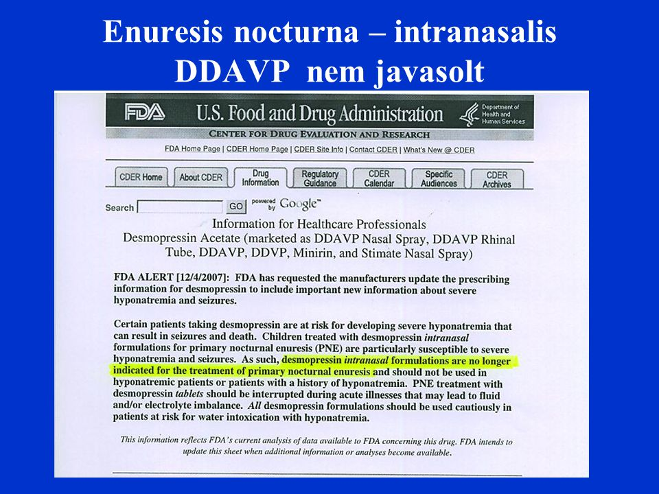 Enuresis nocturna – intranasalis DDAVP nem javasolt
