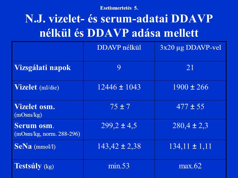 Esetismertetés 5. N.J. vizelet- és serum-adatai DDAVP nélkül és DDAVP adása mellett DDAVP nélkül3x20 µg DDAVP-vel Vizsgálati napok921 Vizelet (ml/die)
