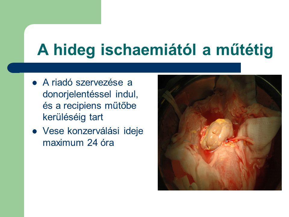 A hideg ischaemiától a műtétig A riadó szervezése a donorjelentéssel indul, és a recipiens műtőbe kerüléséig tart Vese konzerválási ideje maximum 24 óra