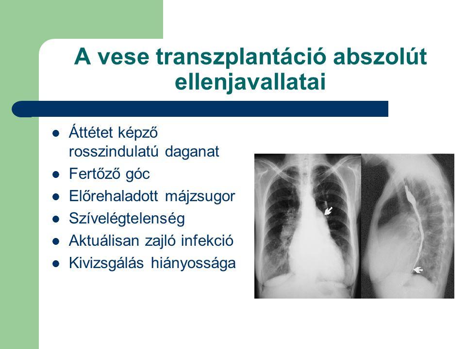 A vese transzplantáció abszolút ellenjavallatai Áttétet képző rosszindulatú daganat Fertőző góc Előrehaladott májzsugor Szívelégtelenség Aktuálisan zajló infekció Kivizsgálás hiányossága
