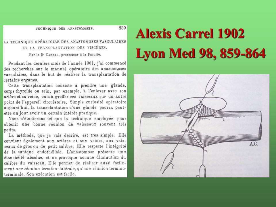 Alexis Carrel 1902 Lyon Med 98, 859-864