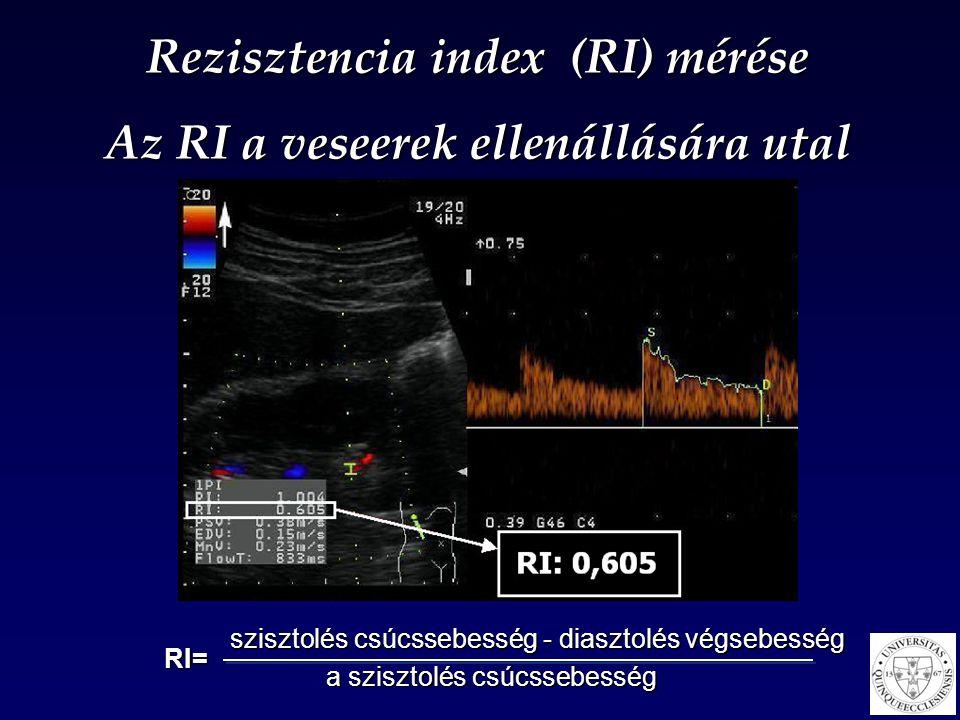 Rezisztencia index (RI) mérése Az RI a veseerek ellenállására utal szisztolés csúcssebesség - diasztolés végsebesség a szisztolés csúcssebesség RI=