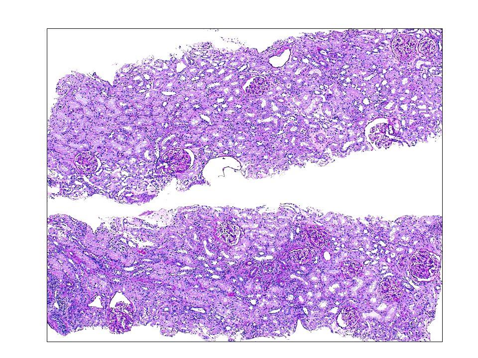 Graves-Basedow-kór Hyperthyreosis + endokrin ophtalmopathia (lehet pretibialis myxoedema) Autoimmun folyamat – TSH ellen termelt stimuláló antitestek (közös antigén ellenes citotoxicus antitestek, melyek mind a pajzsmirigyben, mind a retrobulbaris tér fibroblastjaiban és az extraocularis szemizmokbban jelen vannak; orbitalis kötőszövet, szemizmok gyulladása) Steroid * ezt az autoimmun pathomechanikai folyamatot csökkentette * T4-T3 konverzió gátlása Steroid elhagyásával az autoimmun pajzsmirigy betegség aktiválódott egy hónapon belül Összegzés I.
