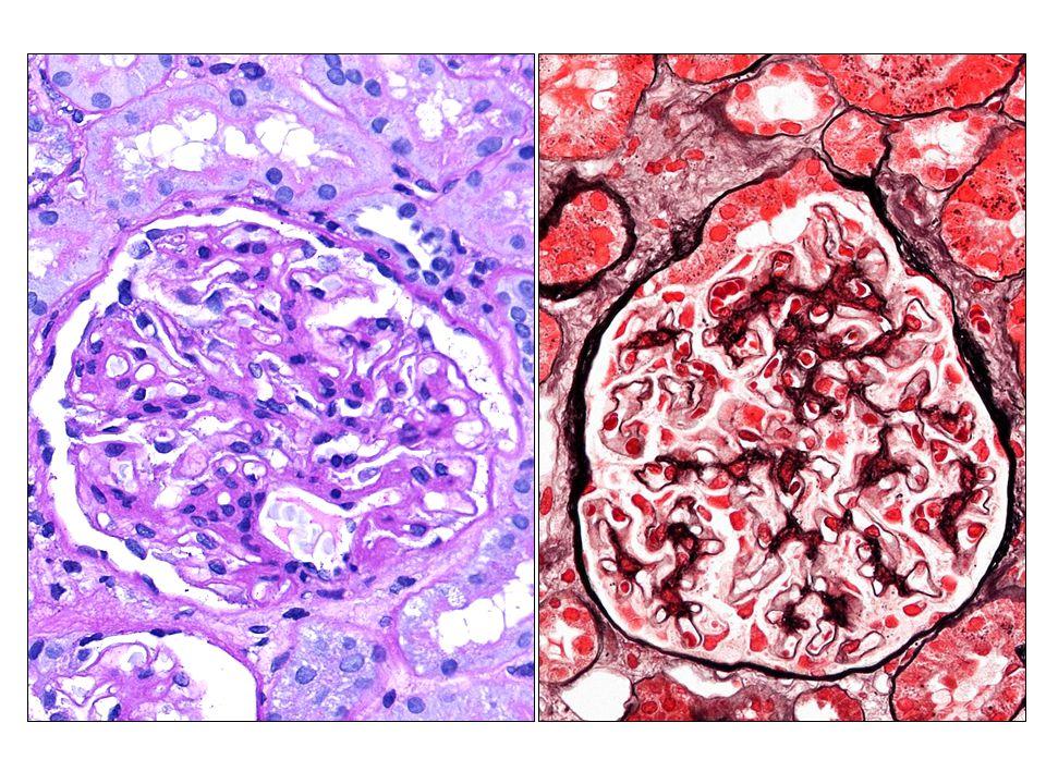 DG: Membranosus nephropathia, dominálóan II. stádium