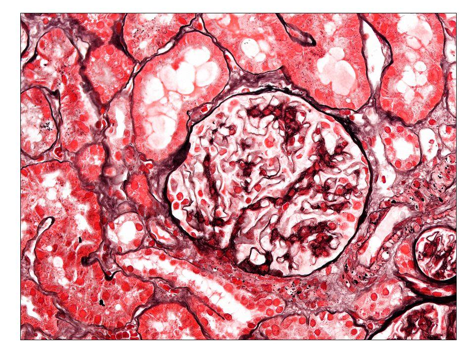 Membranosus nephropathia Kezelés: Membranosus nephropathia Idiopathiás MN Nephrosis syndroma Csökkent eGFRNem-nephroticus proteinuria Rizikóbecslés (risk score, LMWH proteinuria, B2-M ürítés) low riskhigh risk supportiv terápiaISU terápia (?) Sec.