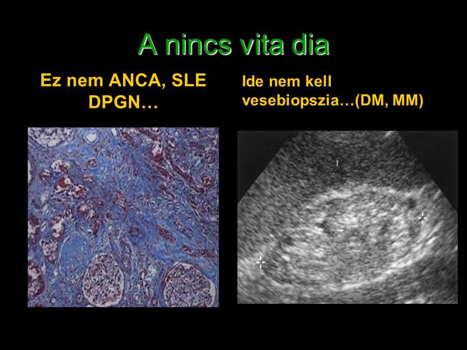 A nincs vita dia Ez nem ANCA, SLE DPGN… Ide nem kell vesebiopszia…(DM, MM)