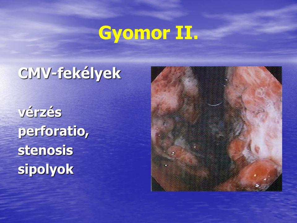 Gyomor II. CMV-fekélyekvérzésperforatio,stenosissipolyok