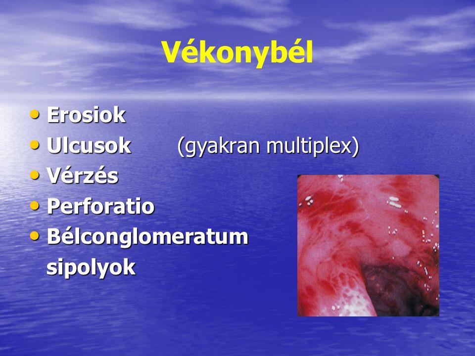 Vékonybél Erosiok Erosiok Ulcusok (gyakran multiplex) Ulcusok (gyakran multiplex) Vérzés Vérzés Perforatio Perforatio Bélconglomeratum Bélconglomeratu