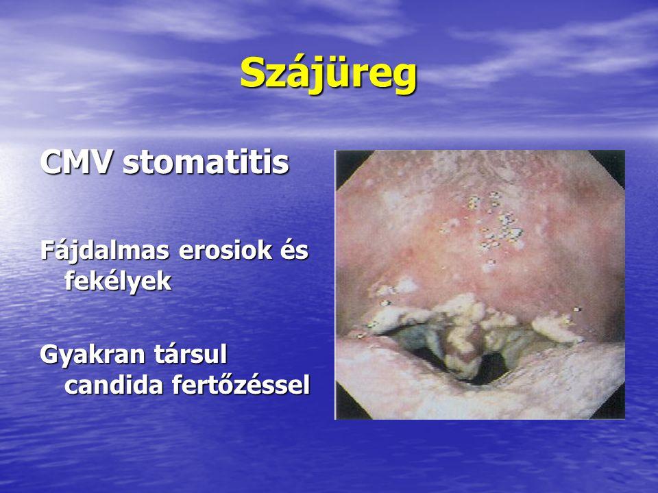Szájüreg CMV stomatitis Fájdalmas erosiok és fekélyek Gyakran társul candida fertőzéssel