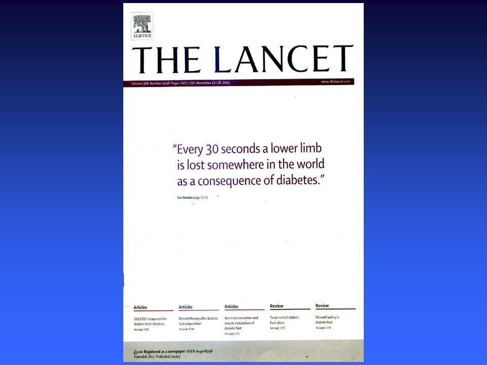 Lábamputációk cukorbetegekben - 2005 Cukorbetegek kórházi felvételére a fejlett országokban a leggyakrabban lábszövődmények miatt kerül sorCukorbetegek kórházi felvételére a fejlett országokban a leggyakrabban lábszövődmények miatt kerül sor A legtöbb amputációt talpi fekély előzi megA legtöbb amputációt talpi fekély előzi meg Napjainkban a diabetesesekben történt alsó végtagi amputációk 85%-át tartják megelőzhetőnek.Napjainkban a diabetesesekben történt alsó végtagi amputációk 85%-át tartják megelőzhetőnek.