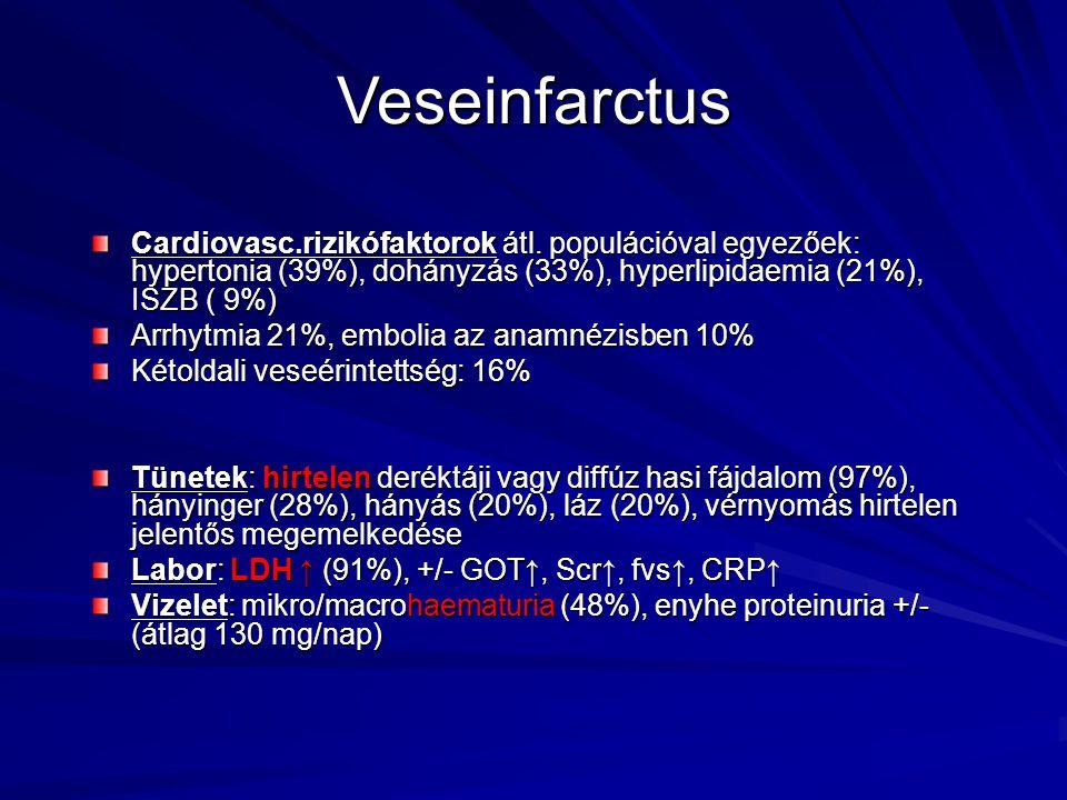 Veseinfarctus Cardiovasc.rizikófaktorok átl. populációval egyezőek: hypertonia (39%), dohányzás (33%), hyperlipidaemia (21%), ISZB ( 9%) Arrhytmia 21%