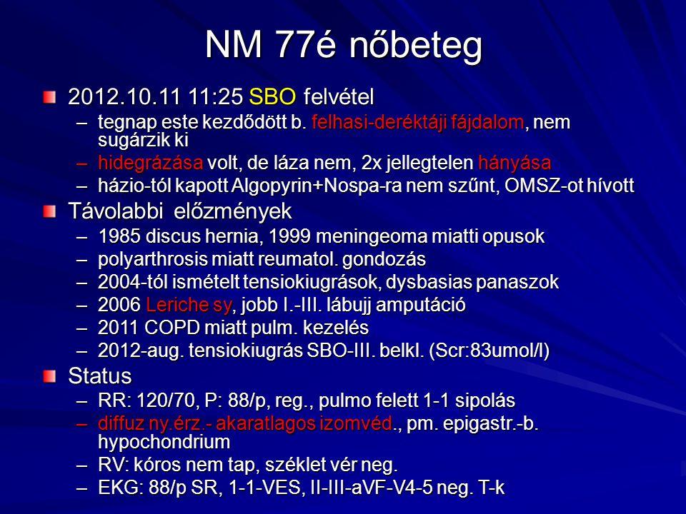 NM 77é nőbeteg 2012.10.11 11:25 SBO felvétel –tegnap este kezdődött b. felhasi-deréktáji fájdalom, nem sugárzik ki –hidegrázása volt, de láza nem, 2x