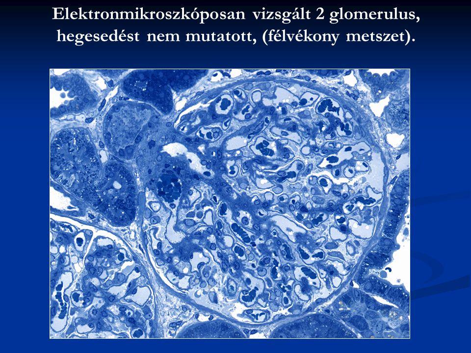 Elektronmikroszkóposan vizsgált 2 glomerulus, hegesedést nem mutatott, (félvékony metszet).