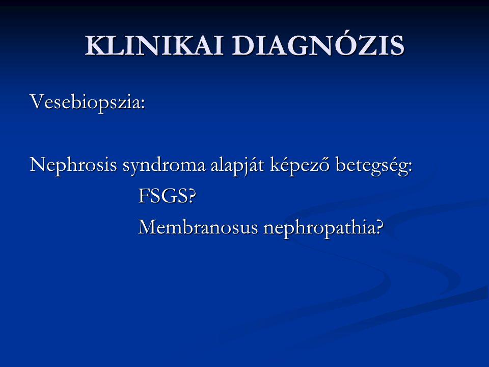 KLINIKAI DIAGNÓZIS Vesebiopszia: Nephrosis syndroma alapját képező betegség: FSGS? FSGS? Membranosus nephropathia? Membranosus nephropathia?