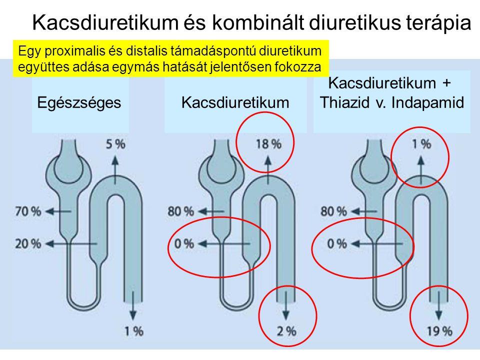 Kacsdiuretikum és kombinált diuretikus terápia EgészségesKacsdiuretikum Kacsdiuretikum + Thiazid v. Indapamid Egy proximalis és distalis támadáspontú