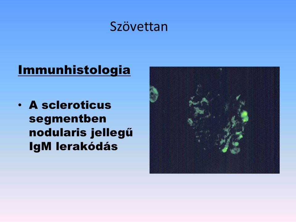 Szövettan Immunhistologia A scleroticus segmentben nodularis jellegű IgM lerakódás