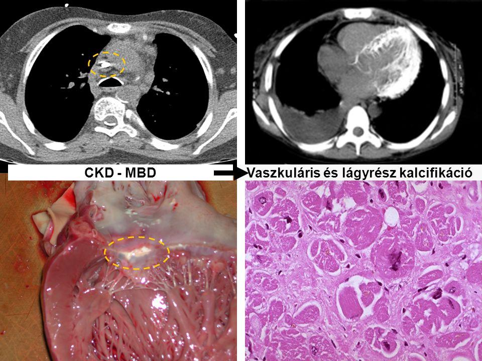 CKD - MBDVaszkuláris és lágyrész kalcifikáció