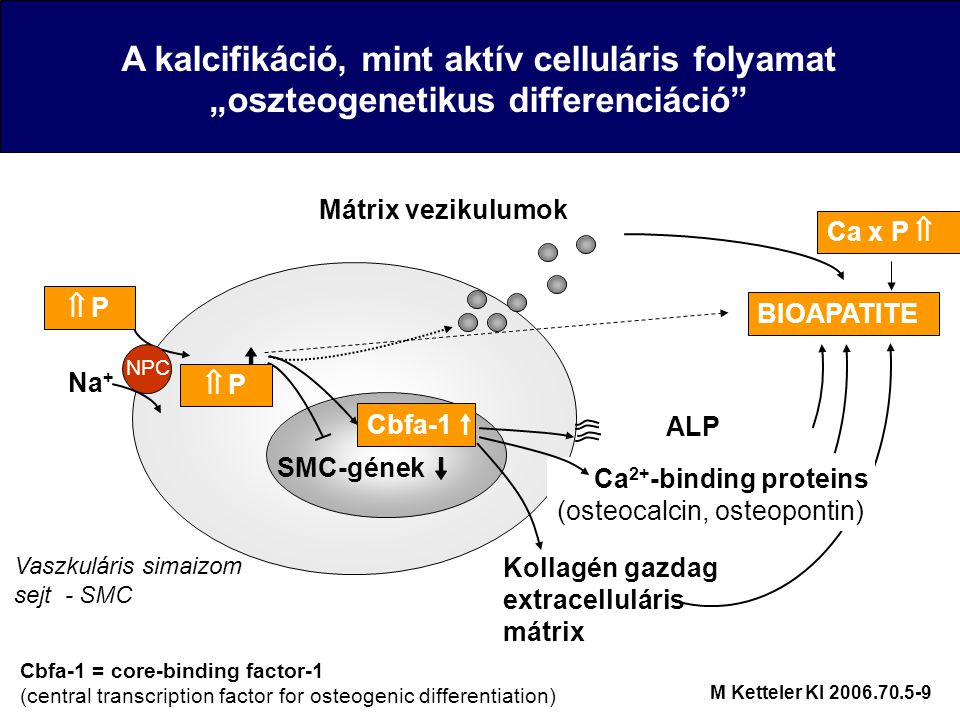 "A kalcifikáció, mint aktív celluláris folyamat ""oszteogenetikus differenciáció Na + NPC  P P Vaszkuláris simaizom sejt - SMC BIOAPATITE Cbfa-1 = core-binding factor-1 (central transcription factor for osteogenic differentiation) Cbfa-1 SMC-gének Ca 2+ -binding proteins (osteocalcin, osteopontin) ALP Kollagén gazdag extracelluláris mátrix  P P Ca x P  M Ketteler KI 2006.70.5-9 Mátrix vezikulumok"
