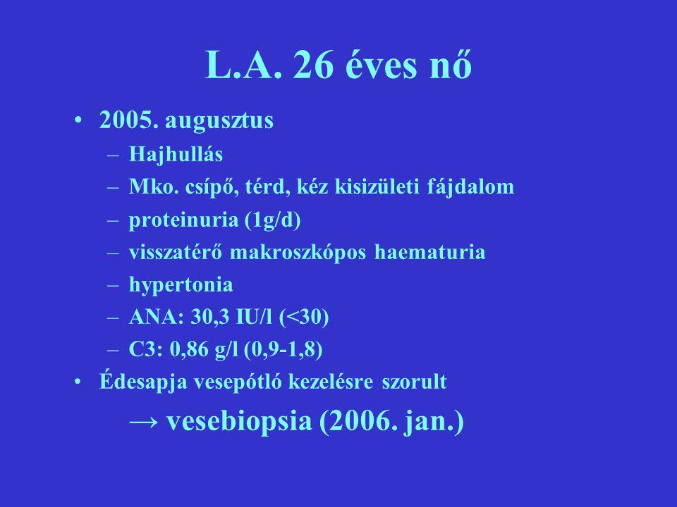 L.A.26 éves nő 2005. augusztus –Hajhullás –Mko.