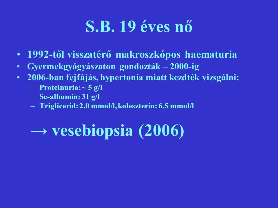 S.B. 19 éves nő 1992-től visszatérő makroszkópos haematuria Gyermekgyógyászaton gondozták – 2000-ig 2006-ban fejfájás, hypertonia miatt kezdték vizsgá