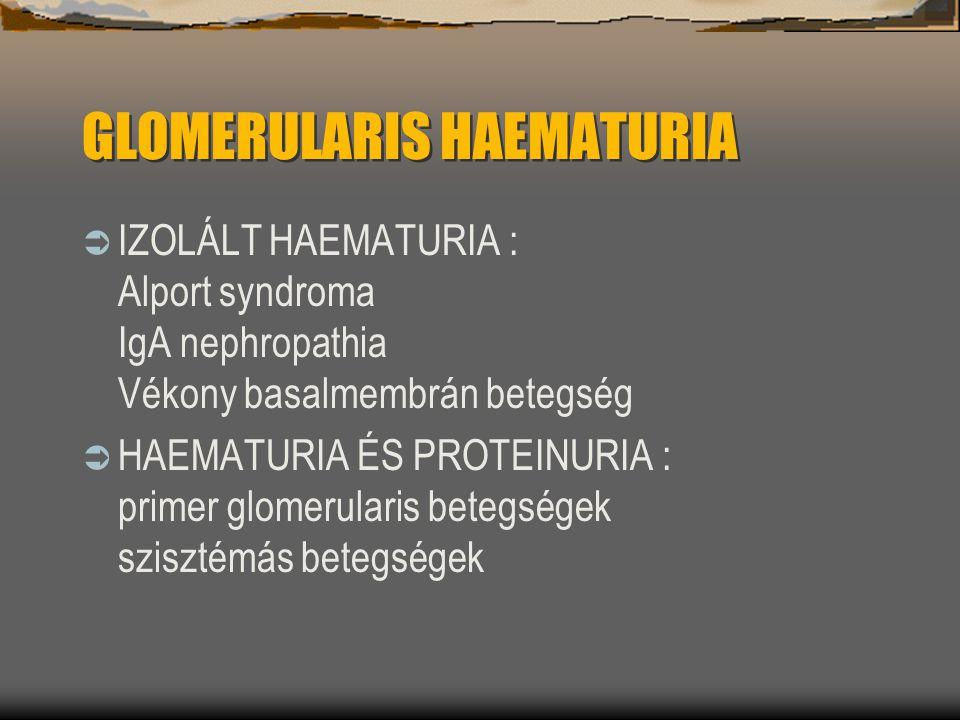 GLOMERULARIS HAEMATURIA  IZOLÁLT HAEMATURIA : Alport syndroma IgA nephropathia Vékony basalmembrán betegség  HAEMATURIA ÉS PROTEINURIA : primer glom