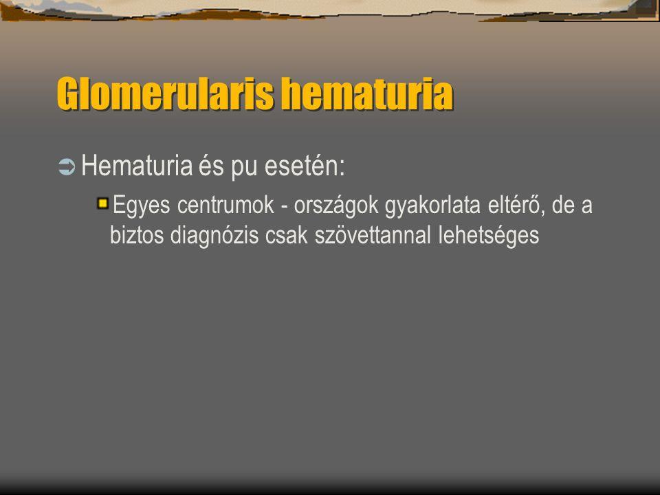 Glomerularis hematuria  Hematuria és pu esetén: Egyes centrumok - országok gyakorlata eltérő, de a biztos diagnózis csak szövettannal lehetséges
