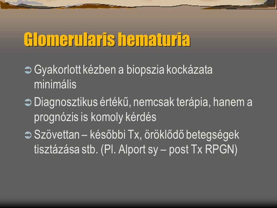 Glomerularis hematuria  Gyakorlott kézben a biopszia kockázata minimális  Diagnosztikus értékű, nemcsak terápia, hanem a prognózis is komoly kérdés