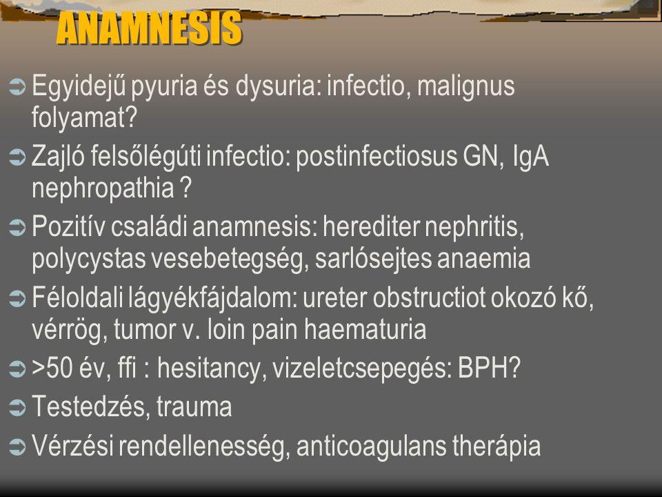 ANAMNESIS  Egyidejű pyuria és dysuria: infectio, malignus folyamat?  Zajló felsőlégúti infectio: postinfectiosus GN, IgA nephropathia ?  Pozitív cs