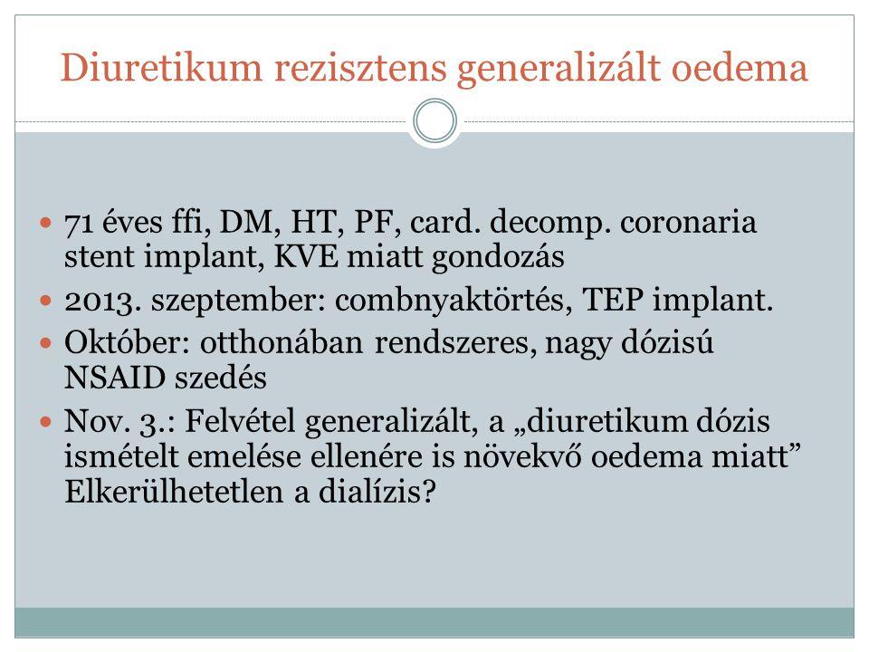 Diuretikum rezisztens generalizált oedema 71 éves ffi, DM, HT, PF, card. decomp. coronaria stent implant, KVE miatt gondozás 2013. szeptember: combnya