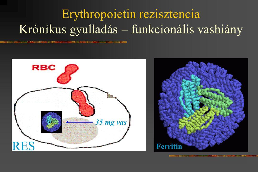 Erythropoietin rezisztencia Krónikus gyulladás – funkcionális vashiány 35 mg vas RES Ferritin