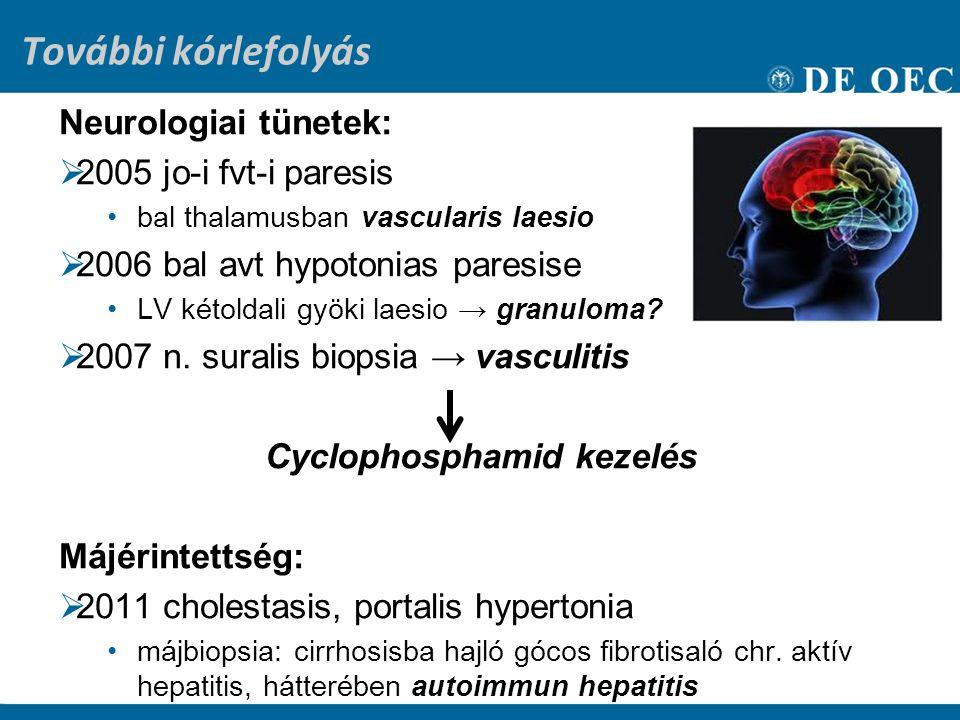 További kórlefolyás Neurologiai tünetek:  2005 jo-i fvt-i paresis bal thalamusban vascularis laesio  2006 bal avt hypotonias paresise LV kétoldali gyöki laesio → granuloma.
