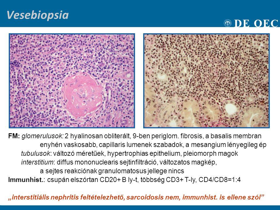 Vesebiopsia FM: glomerulusok: 2 hyalinosan obliterált, 9-ben periglom. fibrosis, a basalis membran enyhén vaskosabb, capillaris lumenek szabadok, a me