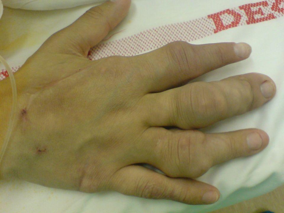 Elfogadta a MANET vezetősége 2008.12.20 Richards NDT 2008 Nephrologia szakrendelésen megjelentek és esetek száma (www.gyogyinfok.hu)
