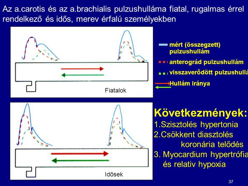 mért (összegzett) pulzushullám anterográd pulzushullám visszaverődött pulzushullám Hullám iránya Az a.carotis és az a.brachialis pulzushulláma fiatal, rugalmas érrel rendelkező és idős, merev érfalú személyekben Következmények: 1.Szisztolés hypertonia 2.Csökkent diasztolés koronária telődés 3.