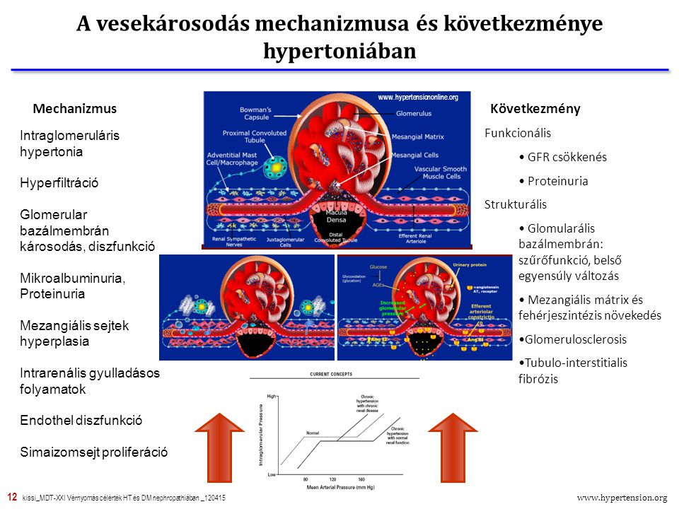 12 kissi_MDT-XXI Vérnyomás célérték HT és DM nephropathiában _120415 A vesekárosodás mechanizmusa és következménye hypertoniában Vérnyomás Intraglomeruláris hypertonia Hyperfiltráció Glomerular bazálmembrán károsodás, diszfunkció Mikroalbuminuria, Proteinuria Mezangiális sejtek hyperplasia Intrarenális gyulladásos folyamatok Endothel diszfunkció Simaizomsejt proliferáció Funkcionális GFR csökkenés Proteinuria Strukturális Glomularális bazálmembrán: szűrőfunkció, belső egyensúly változás Mezangiális mátrix és fehérjeszintézis növekedés Glomerulosclerosis Tubulo-interstitialis fibrózis KövetkezményMechanizmus www.hypertensiononline.org www.hypertension.org
