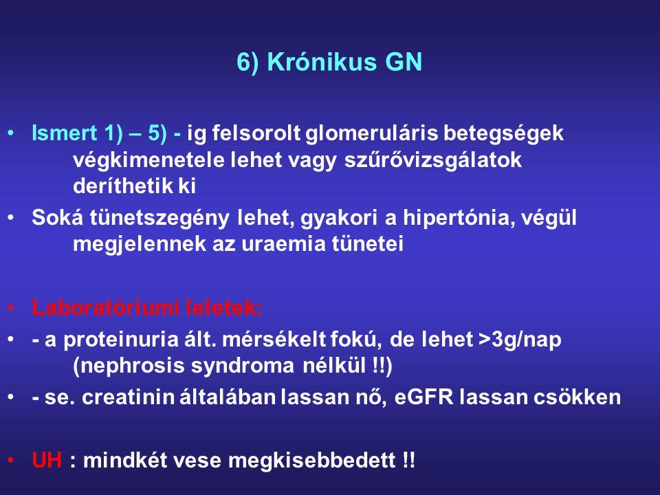 6) Krónikus GN Ismert 1) – 5) - ig felsorolt glomeruláris betegségek végkimenetele lehet vagy szűrővizsgálatok deríthetik ki Soká tünetszegény lehet,