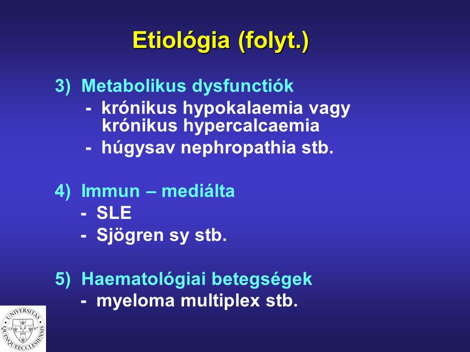 Etiológia (folyt.) 3) Metabolikus dysfunctiók - krónikus hypokalaemia vagy krónikus hypercalcaemia - húgysav nephropathia stb. 4) Immun – mediálta - S